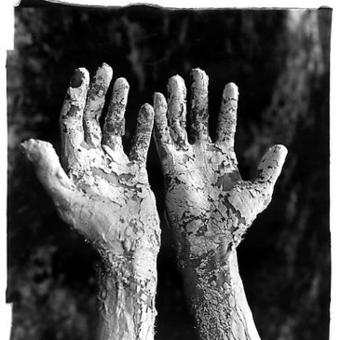 Purification of leprosy of sin